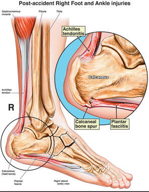 Post-accident Right Foot Calcaneal Spur and Plantar Fascia Injuries