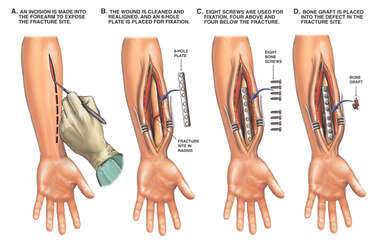 Surgical Fixation of Fractured Radius