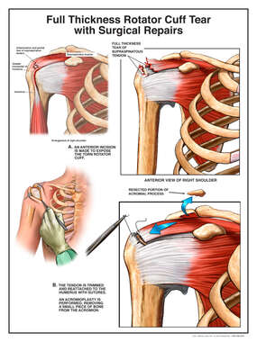 Full Thickness Rotator Cuff Tear
