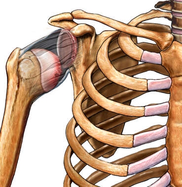 Dislocated Shoulder Injury (Joint Dislocation)