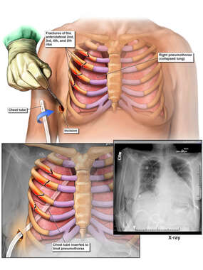 Right Rib Fractures and Pneumothorax with Chest Tube Placement