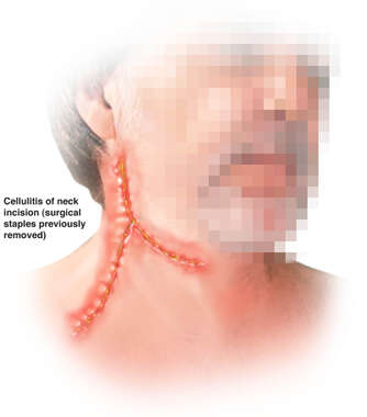 Cellulitis of Neck