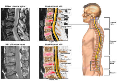 Cervical and Lumbar Spine Injuries