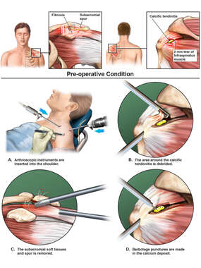 Left Shoulder Injury with Surgical Repair