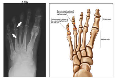 Left Toe Fractures X-Ray