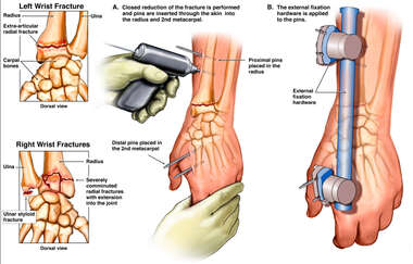 External Fixation of Bilateral Wrist Fractures