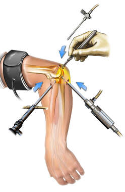 Insertion of Arthroscopic Instruments in Elbow