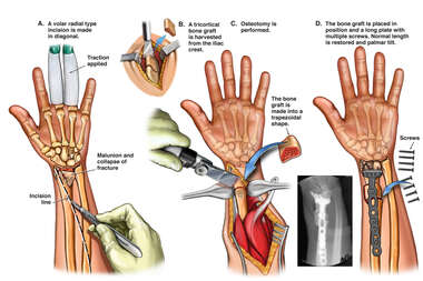 Radial Osteotomy Revision Surgery