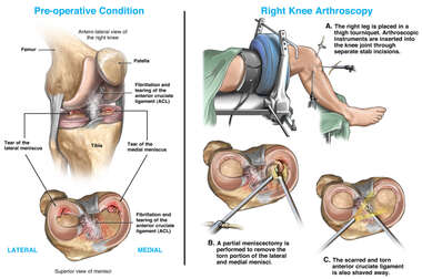 Accident-Related Right Knee Injuries with Arthroscopic Repairs