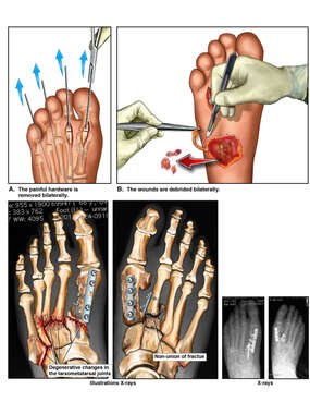 Bilateral Surgical Revisions to Feet with Subsequent Degenerative Changes and Non-union
