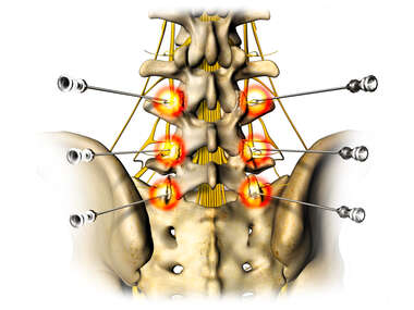 Lumbar Injection Sites