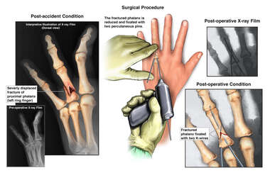 Left Ring Finger Fracture and Surgical Fixation