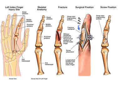 Finger Fracture with Surgical Fixation