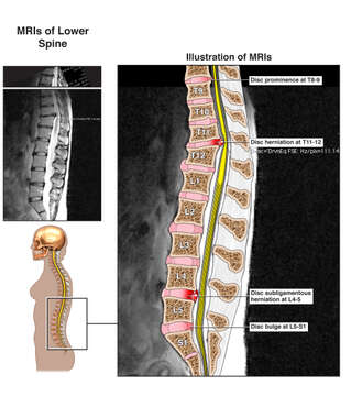 Female Figure with Multilevel Injuries to the Thoracic and Lumbar Spine