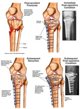 Comminuted Tibial Plateau Fracture