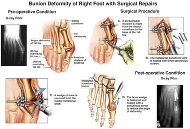 Bunion Deformity of Right Foot with Surgical Repairs