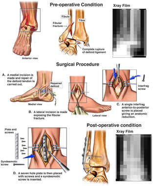 Fracture and Dislocation of the Right Ankle
