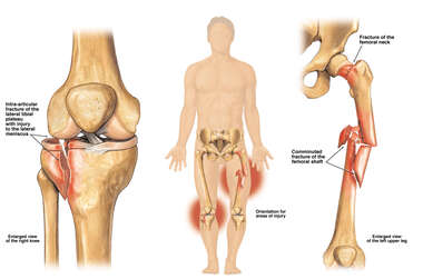 Tibial Plateau and Femur Fractures