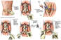 Lumbar Spine Injuries with Surgical Fusion