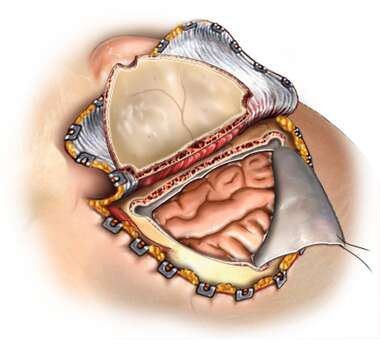 Brain Surgery Surgical Field