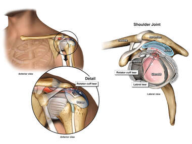 Left Shoulder Condition Following Fall