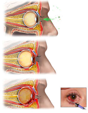 Infection of Right Eye with Development of Endophthalmitis