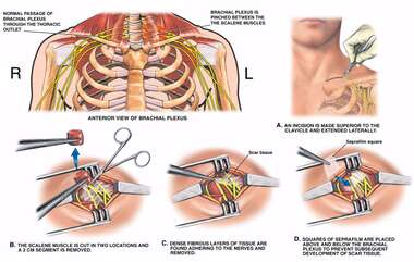 Left Thoracic Outlet Syndrome with Surgical Repairs