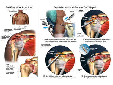 Right Shoulder Condition with Arthroscopic Surgery
