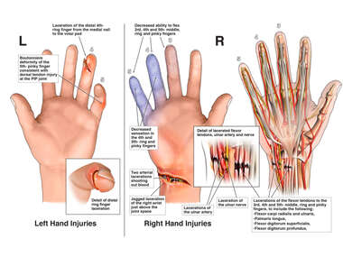 Left Ring and Right Wrist Lacerations with Tendon and Nerve Involvement