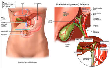 Female Abdomen Gallbladder Anatomy in Area of Proposed Laparoscopic Cholecystectomy