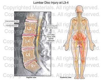 Lumbar Disc Injury at L3-4