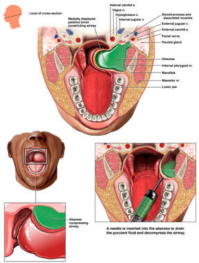 Drainage of Pharyngeal Abscess