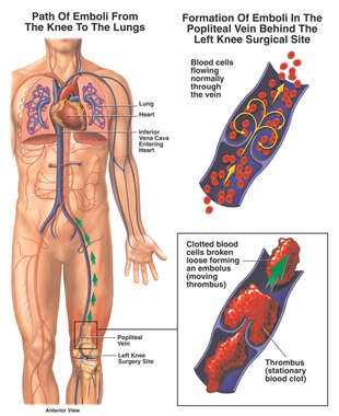 Pulmonary Embolism (Post-operative)