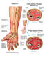 Post-accident Hand and Arm Injuries with Compartment Syndrome