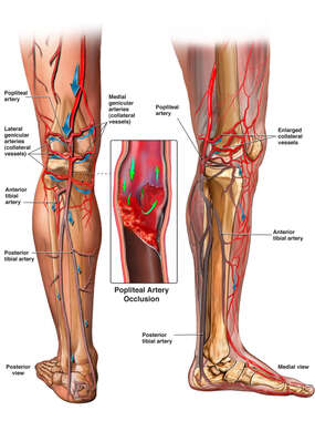 Popliteal Artery Occlusion with Collateral Blood Flow