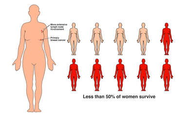 Stage 3 Breast Cancer