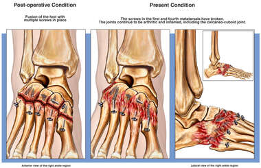 Fusion of the Foot with Continued Arthritis