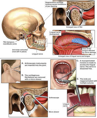 Right TMJ Arthroscopy and Lingual Nerve Repair Secondary to Tooth Extraction Injury