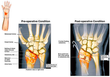 Painful Nonunion of Right Distal Radius with Surgical Repair