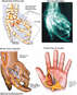 Traumatic Crush Injuries of Left Hand