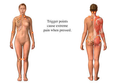 Fibromyalgia Syndrome: Tender Points, female