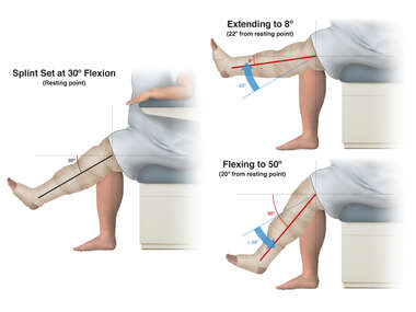 Left Leg Flexion and Extension with Splint Set at 30º