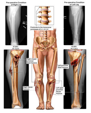 Male Lower Extremities with X-Ray Films and Fractures to the Bilateral Lower Legs