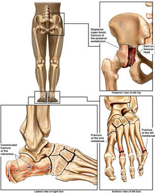 Fractures to the Left Pelvis, and Bilateral Feet.