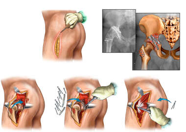 Surgical Fixation of the Left Acetabulum