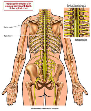 Anatomy of the Upper Spinal Cord with Compression
