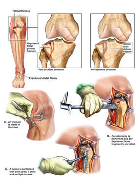 Right Knee and Ankle Fractures with Fixation Surgery