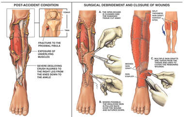 Degloving Injury of the Right Leg with Surgical Repairs