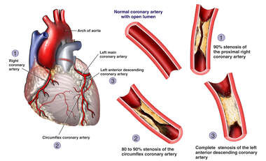 Advanced Coronary Artery Disease