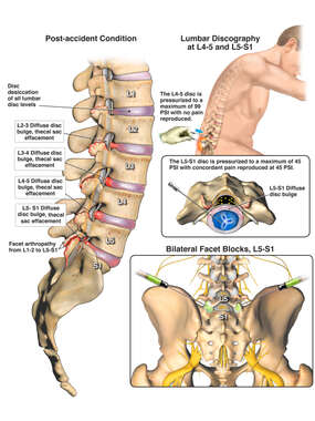Back Pain Resulting From L5-S1 Facet Syndrome / Spondylosis